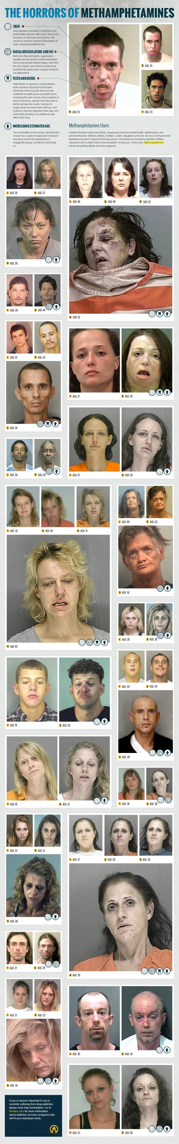 The Horrors of Methamphetamines (courtesy of Rehabs.com)