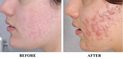 What a difference! (courtesy of www.skinsecretsmedicalspa.com)